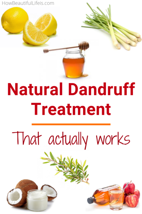 how to get rid of dandruff remedies